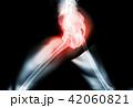 Hip painful skeleton x-ray, 3D illustration. 42060821