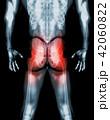 Hip painful skeleton x-ray, 3D illustration. 42060822