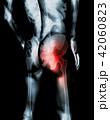 Hip painful skeleton x-ray, 3D illustration. 42060823