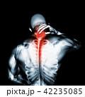 Neck painful - cervical spine, 3D illustration. 42235085