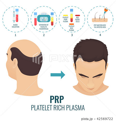 PRP alopecia treatment poster 42569722