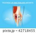 関節炎 膝 ベクトルのイラスト 42718455
