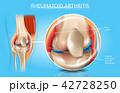 関節炎 リウマチ リューマチのイラスト 42728250