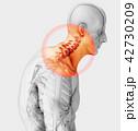 Neck painful - cervical spine, 3D illustration. 42730209