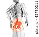 Hip painful skeleton x-ray, 3D illustration. 42730211