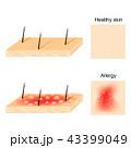アレルギー 肌 健康のイラスト 43399049