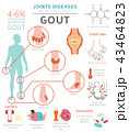 Joints diseases. Gout infographic 43464823