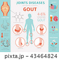 Joints diseases. Gout infographic 43464824