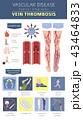 Vascular diseases. Vein thrombosis infographic 43464833