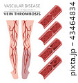 Vascular diseases. Vein thrombosis infographic 43464834