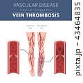 Vascular diseases. Vein thrombosis infographic 43464835
