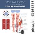 Vascular diseases. Vein thrombosis infographic 43464836