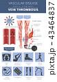 Vascular diseases. Vein thrombosis infographic 43464837