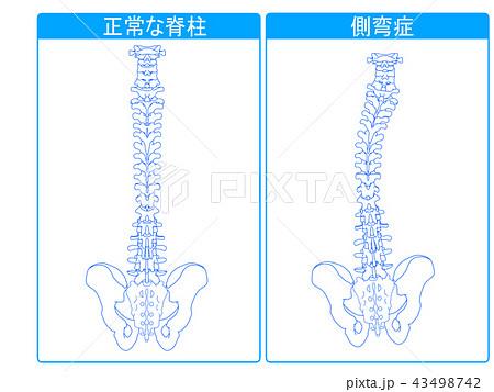 正常な脊柱と側弯症の比較1 43498742
