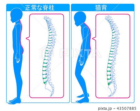 正常な脊柱と猫背の比較 43507885