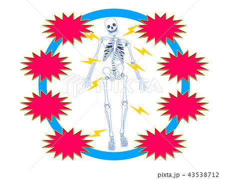 骨格のゆがみ(言葉なし) 43538712