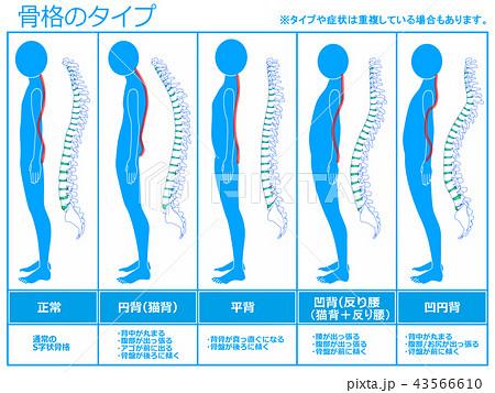 骨格のタイプ 脊柱あり(ブルー) 43566610