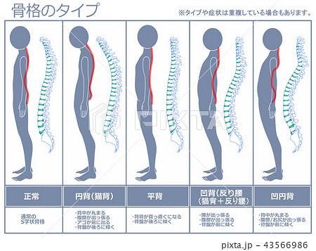 骨格のタイプ 脊柱あり(グレー) 43566986