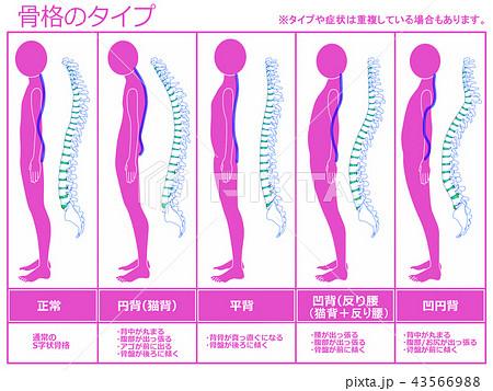 骨格のタイプ 脊柱あり(ピンク) 43566988