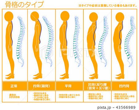 骨格のタイプ 脊柱あり(オレンジ) 43566989