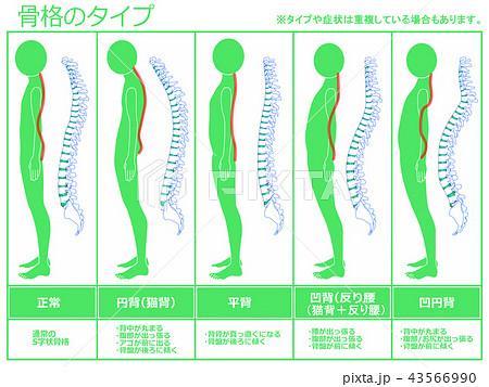 骨格のタイプ 脊柱あり(グリーン) 43566990