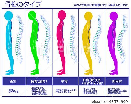 骨格のタイプ 脊柱あり(カラー) 43574990