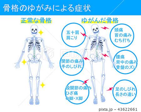 骨格のゆがみによる症状1 43622661