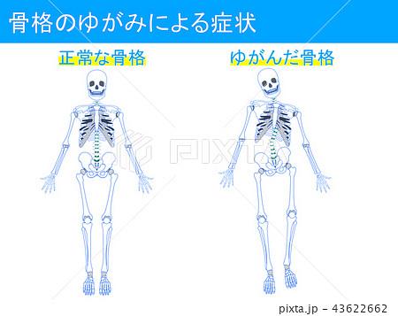 骨格のゆがみによる症状2 43622662