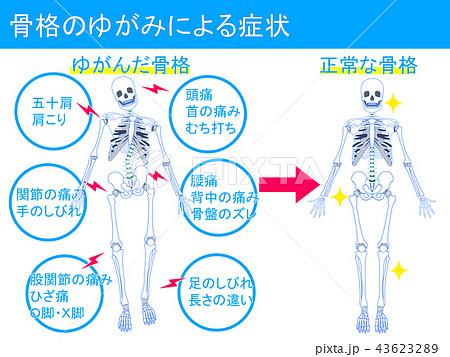 骨格のゆがみによる症状3 43623289