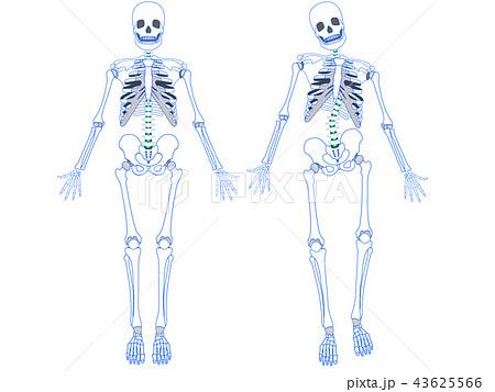 正常な骨格とゆがんだ骨格 43625566