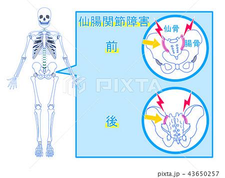 仙腸関節障害 43650257