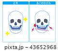 顎関節症 顎関節 ゆがみのイラスト 43652968