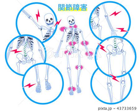 関節障害の説明図 43733659