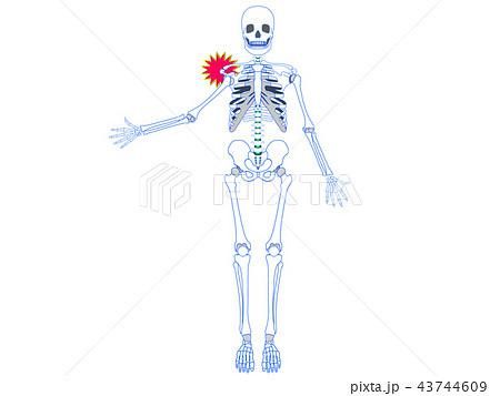肩関節脱臼2 43744609