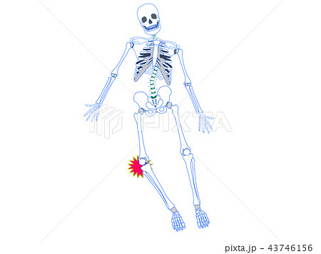 膝関節捻挫 43746156