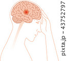 頭痛 脳 片頭痛のイラスト 43752797