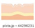皮膚の断面図 シワ 44296231