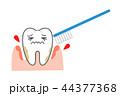 歯周病 出血歯磨き 44377368