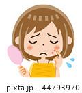 ニキビ 女性 44793970