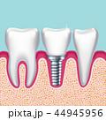 ヒューマン 歯 デンタルのイラスト 44945956