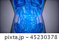 医療 疾患 X線のイラスト 45230378
