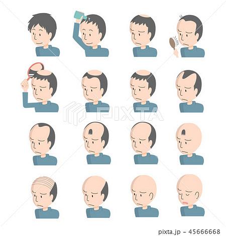 男性 髪の悩み 脱毛 ハゲ 薄毛 パターン 45666668