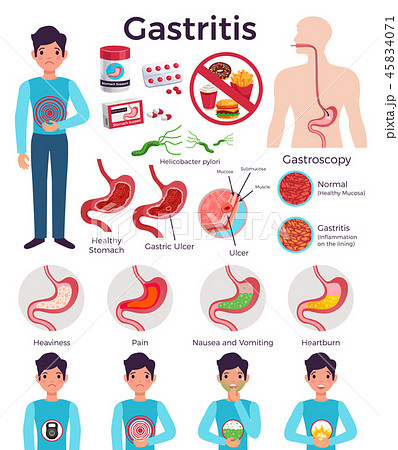 Gastritis Infographic Elements Set 45834071