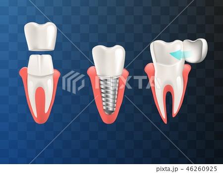 Realistic Illustration Set Teeth Different Problem 46260925