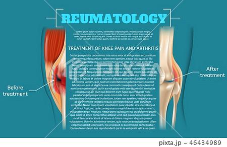 Illustration Treatment of Knee Pain and Arthritis 46434989