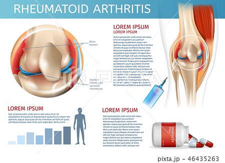 Infographic Treatment Method Rheumatoid Arthritis 46435263