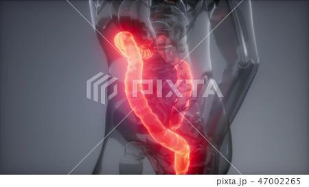 Human Colon Radiology Exam 47002265