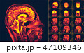 Magnetic resonance imaging of the brain. MRI scan 47109346