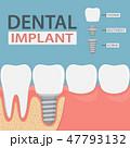 インプラント 歯 デンタルのイラスト 47793132