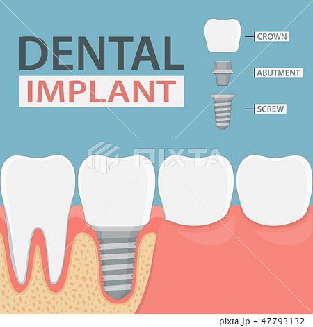Infographics of human teeth and dental implant. 47793132